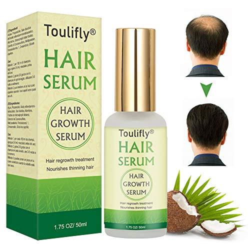 Hair Growth Serum, Hair Loss and Hair Thinning Treatment, Stops Hair Loss, Natural Herbal Essence,Thinning, Balding, Repairs Hair Follicles, Promotes Thicker, Stronger Hair and New Hair Growth(50ml)