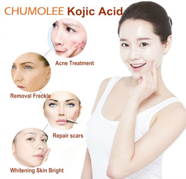 Acid powder whitening face cream remove Freckle