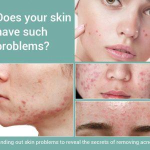 Acne Treatment Face Cream Blackhead Removal
