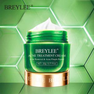 Acne Treatment Cream Pimple Removal Spots Oil Control